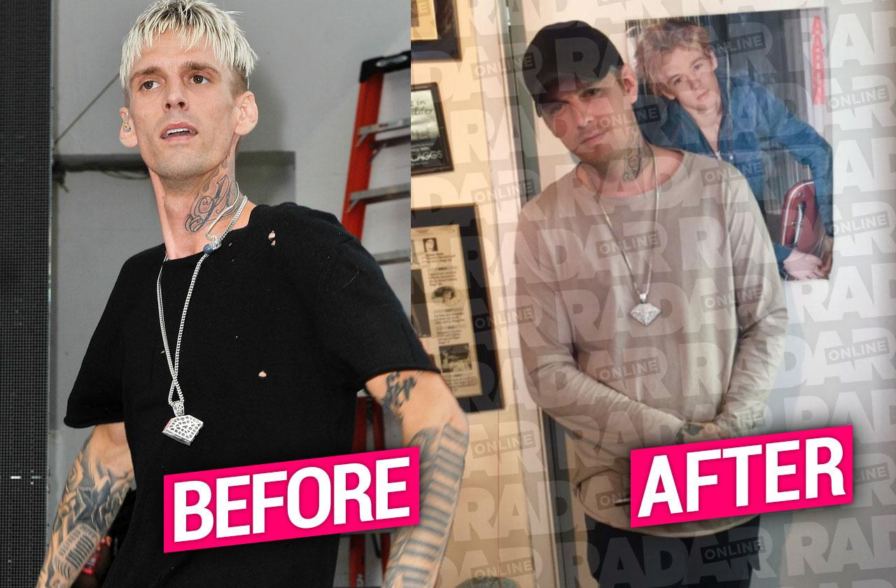 //Aaron Carter First Photo After Rehab pp