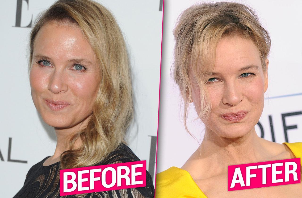 //Renee Zellweger Plastic Surgery Makeover Eyes Lips Facelift Revealed