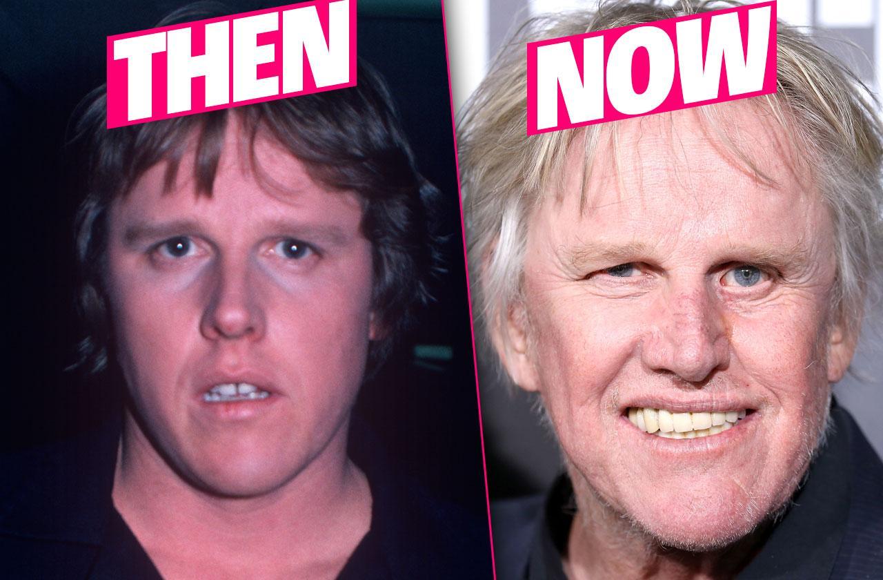 gary busy plastic surgery
