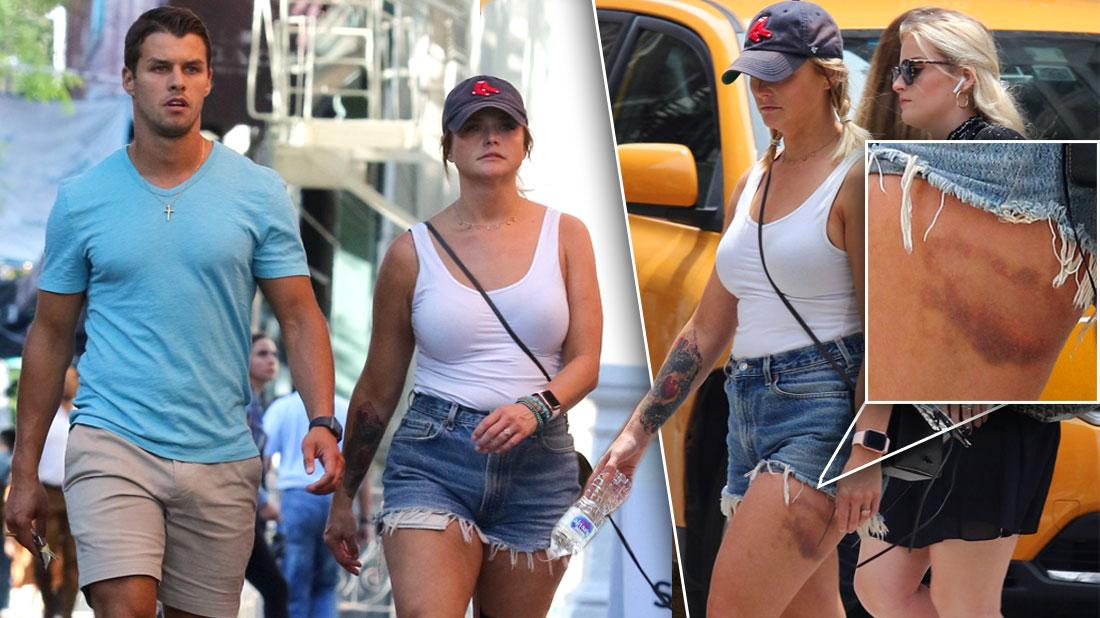 Miranda Lambert Shows Bruise In Shorts With Brendan McLoughlin