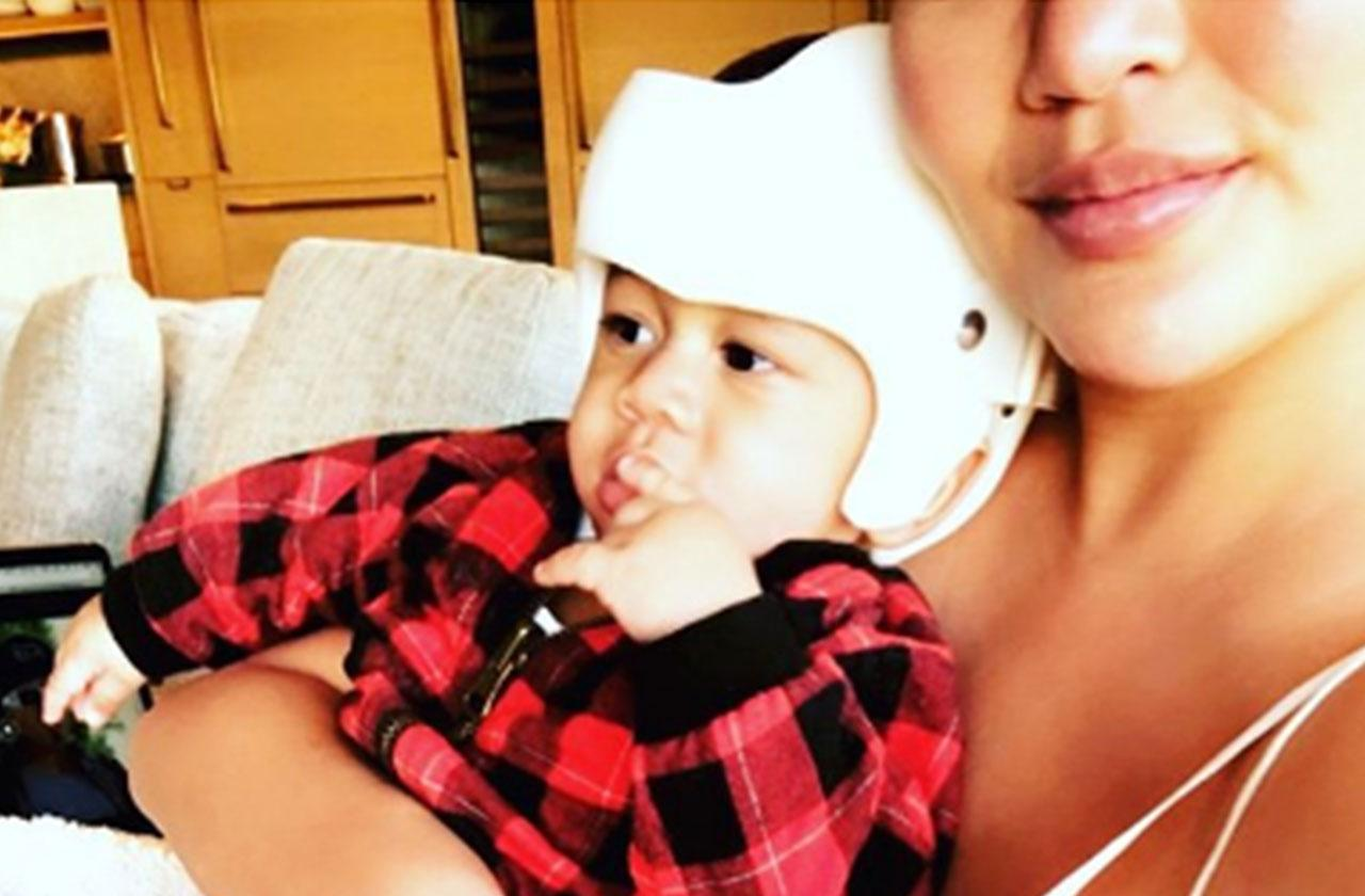 Chrissy Teigen Son Miles Needs Helmet Misshapen Head
