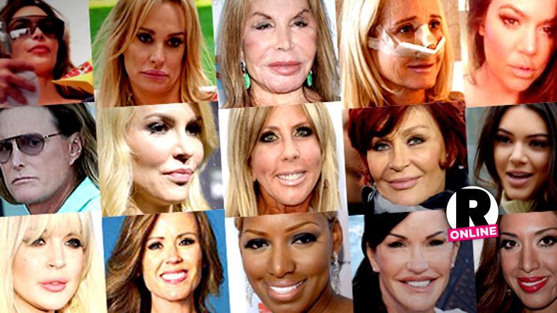 //reality stars plastic surgery slideshow pp