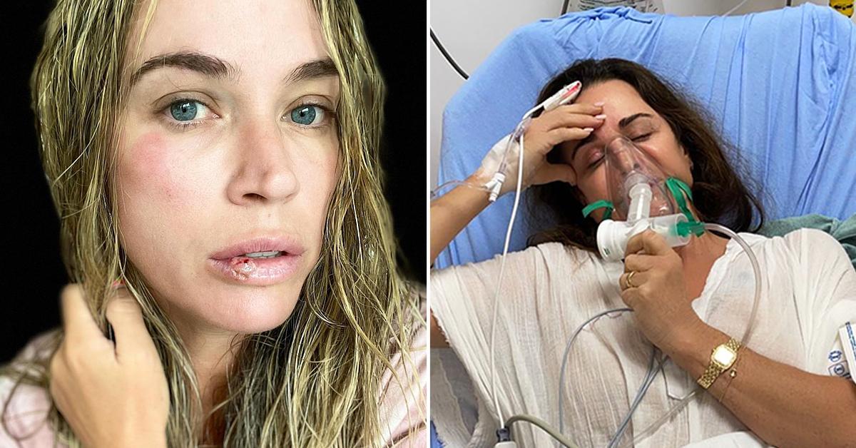 teddi mellencamp vertigo injured photos kyle richards bee stings hospital r