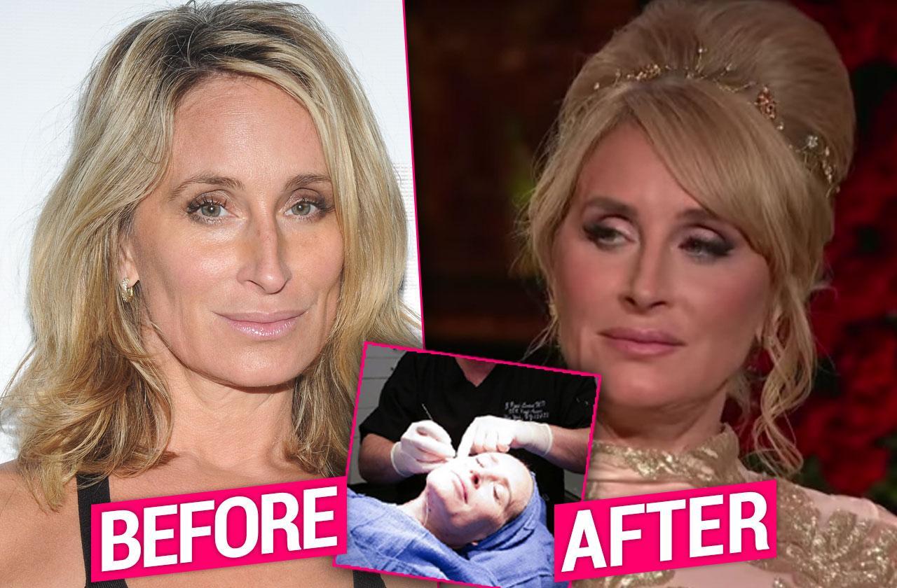 Sonja Morgan RHONY Reunion Facelift Plastic Surgery