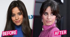 Camila Cabello Plastic Surgery Before After