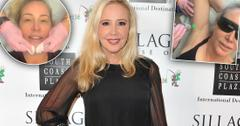 'RHOC' Star Shannon Beador Going Overboard With Plastic Surgery
