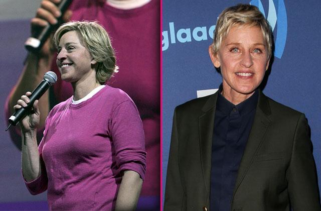 Ellen Degeneres Surgery breast reduction