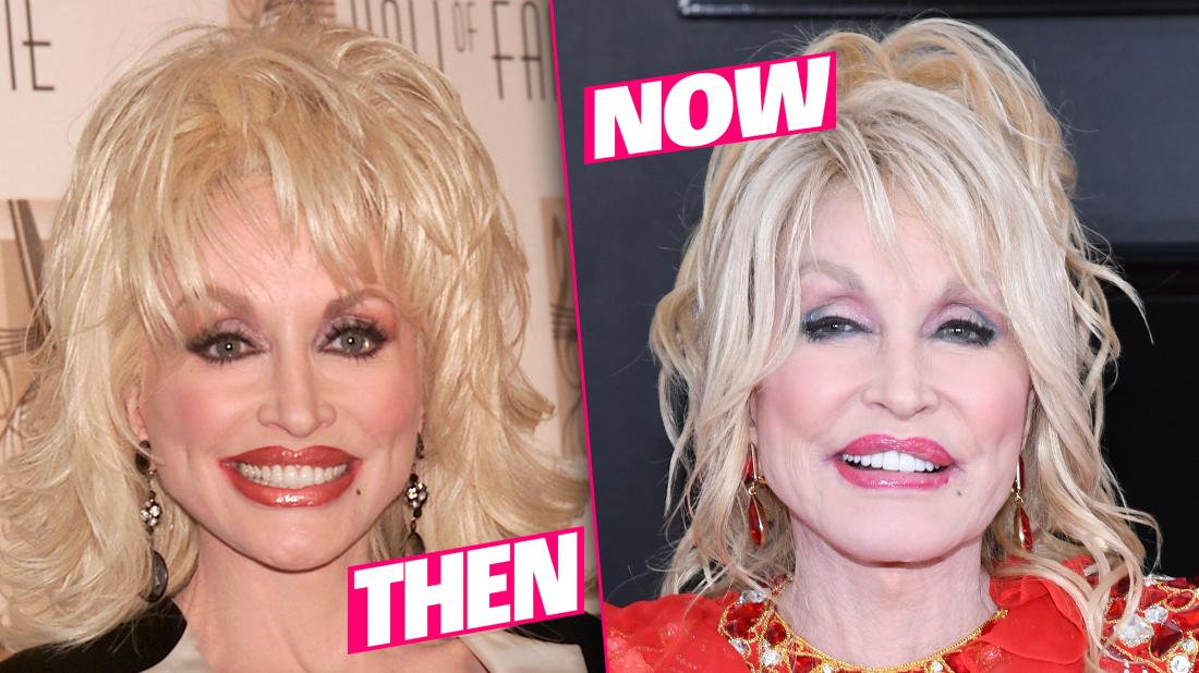 Dolly Parton Smiling Closeup 20 Years Apart Plastic Surgery