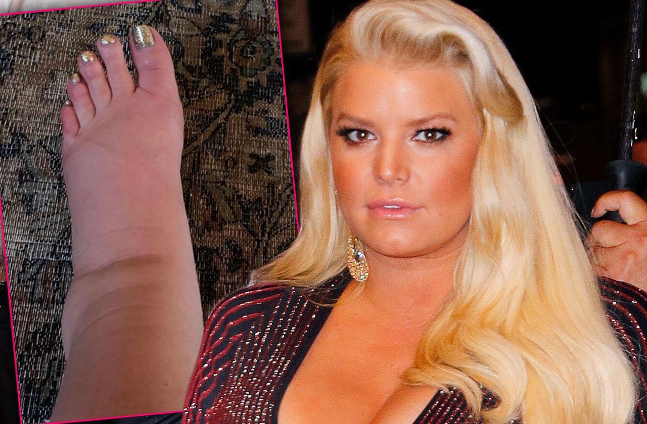 Pregnant Jessica Simpson Swollen Foot Photo