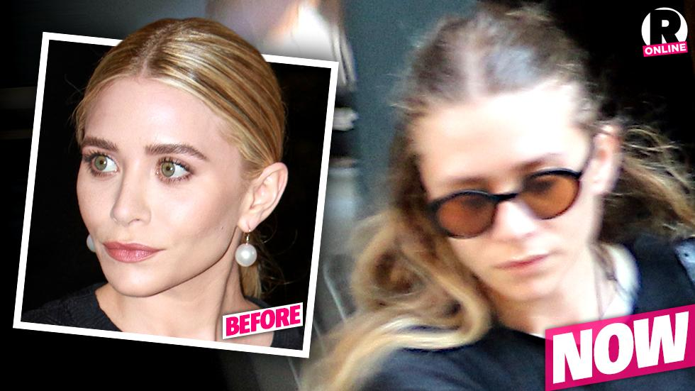 Ashley Olsen Hair Loss Lyme Disease