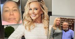 RHOC' Star Shannon Beadors Multiple Plastic Surgery Procedures Since January Facelift Revealed