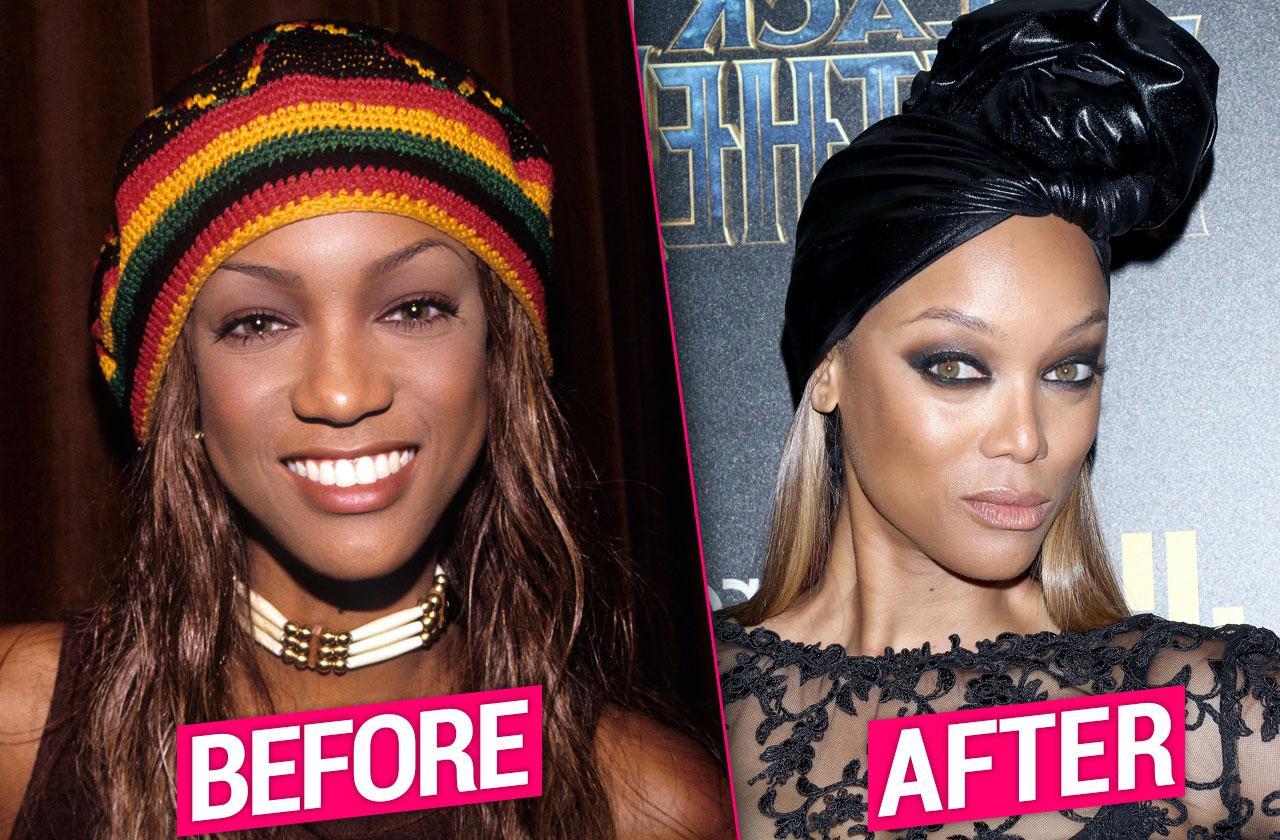 Tyra Banks Nose Job Photos