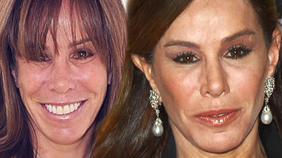 //Melissa Rivers face pp